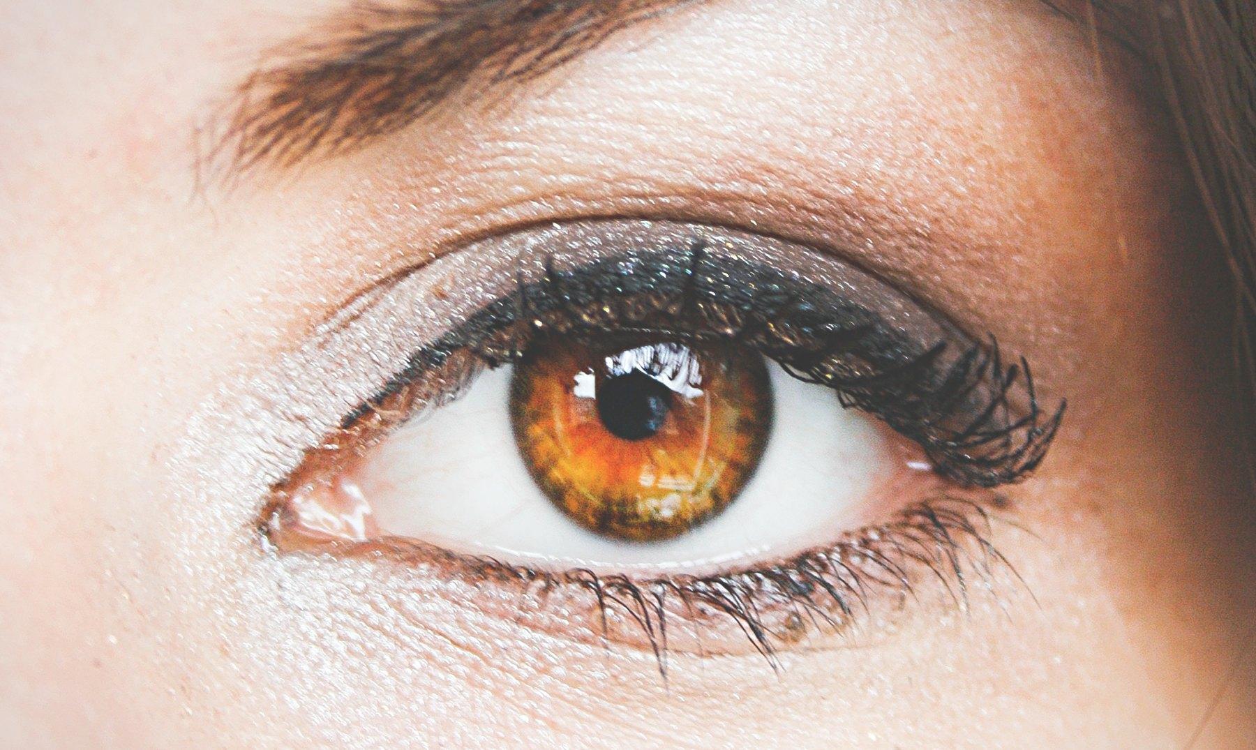La causa de los círculos castaños oscuros alrededor de los ojos