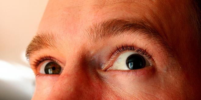 Cuando una pupila es más grande que la otra: La anisocoria.