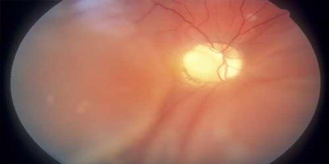 7 Enfermedades que pueden detectarse mirando los ojos.