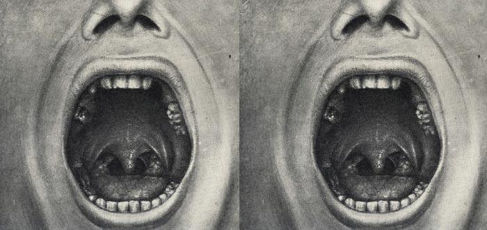 Ilustración de los métodos del Doctor Cotton para curar trastornos mentales, mediante la extracción de piezas dentales
