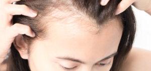 Por qué se cae el pelo
