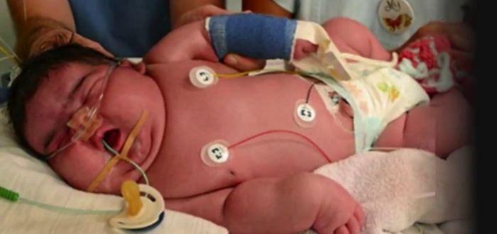 Casos de Embarazos Raros