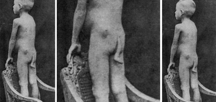 cola humana