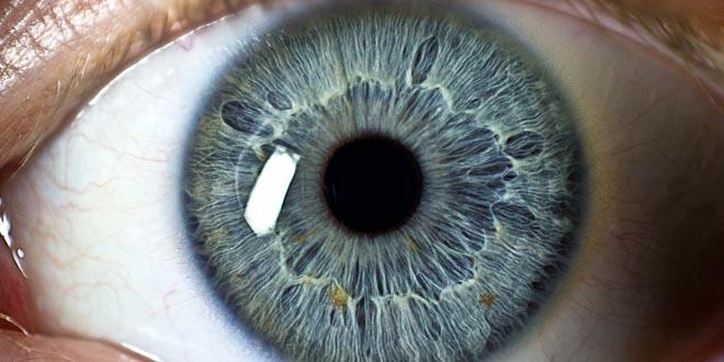Optogramas ojos