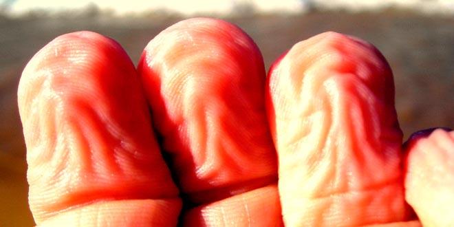 por que se arrugan los dedos