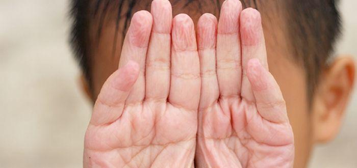 Por qué se arrugan los dedos en el agua. Descubrelo,.