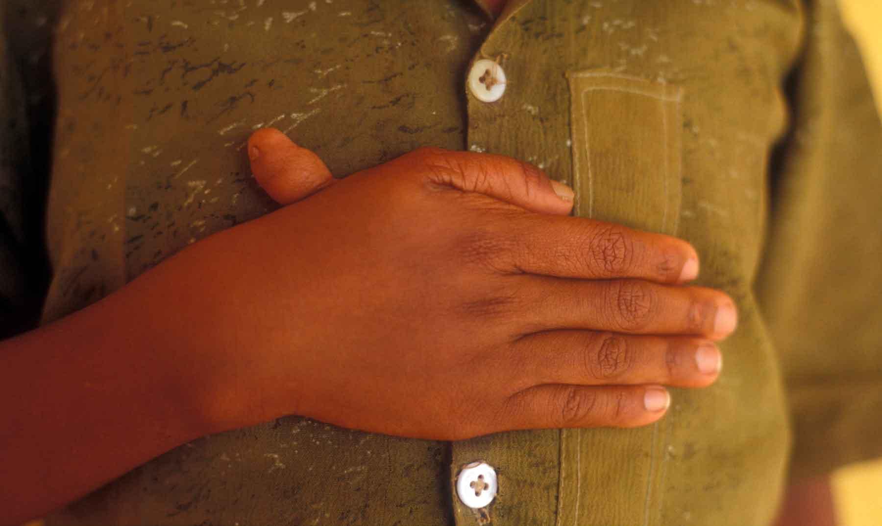 Polidactilia ¿Cuántos dedos tienes