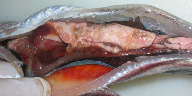 Anisakis-parasito