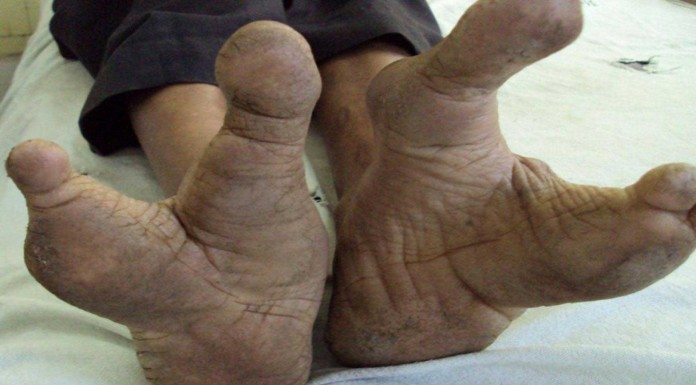 VADOMAaLos vadoma: la tribu africana con pies de avestruz
