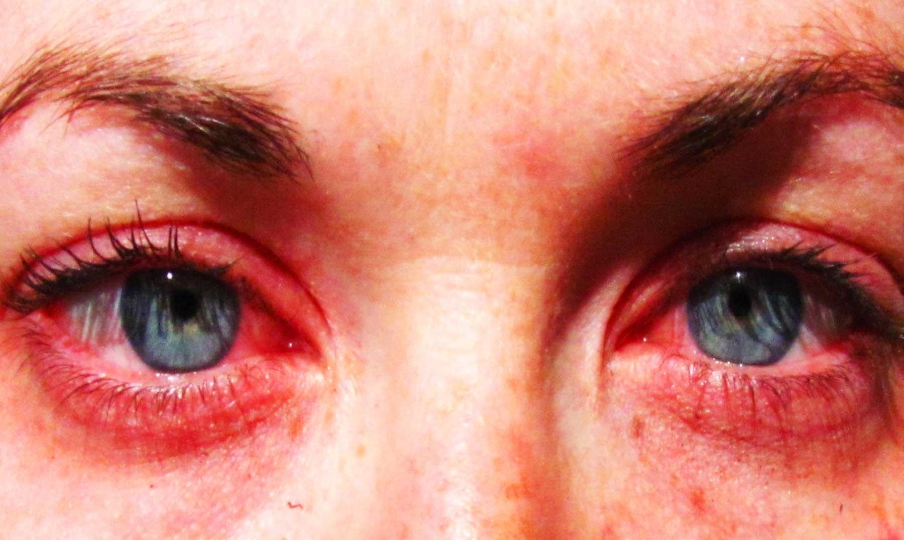 5 alergias súper extrañas. ¡Increíble!