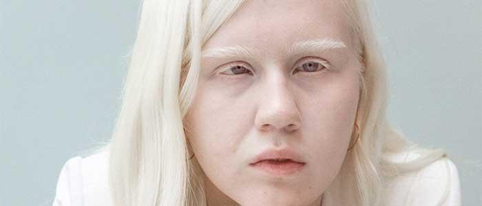 personas albinas