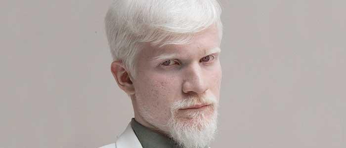 que es el albinismo