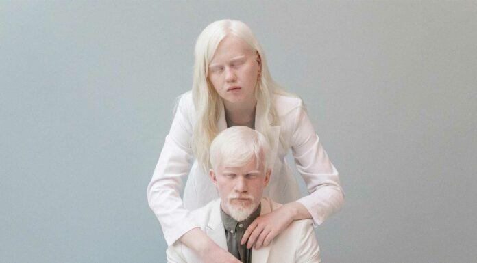 tipos de albinismo