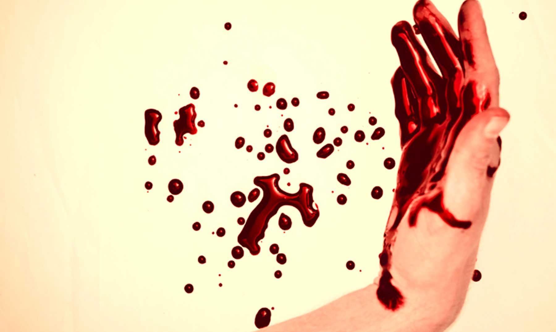 ¿Un tratamiento de belleza con sangre?