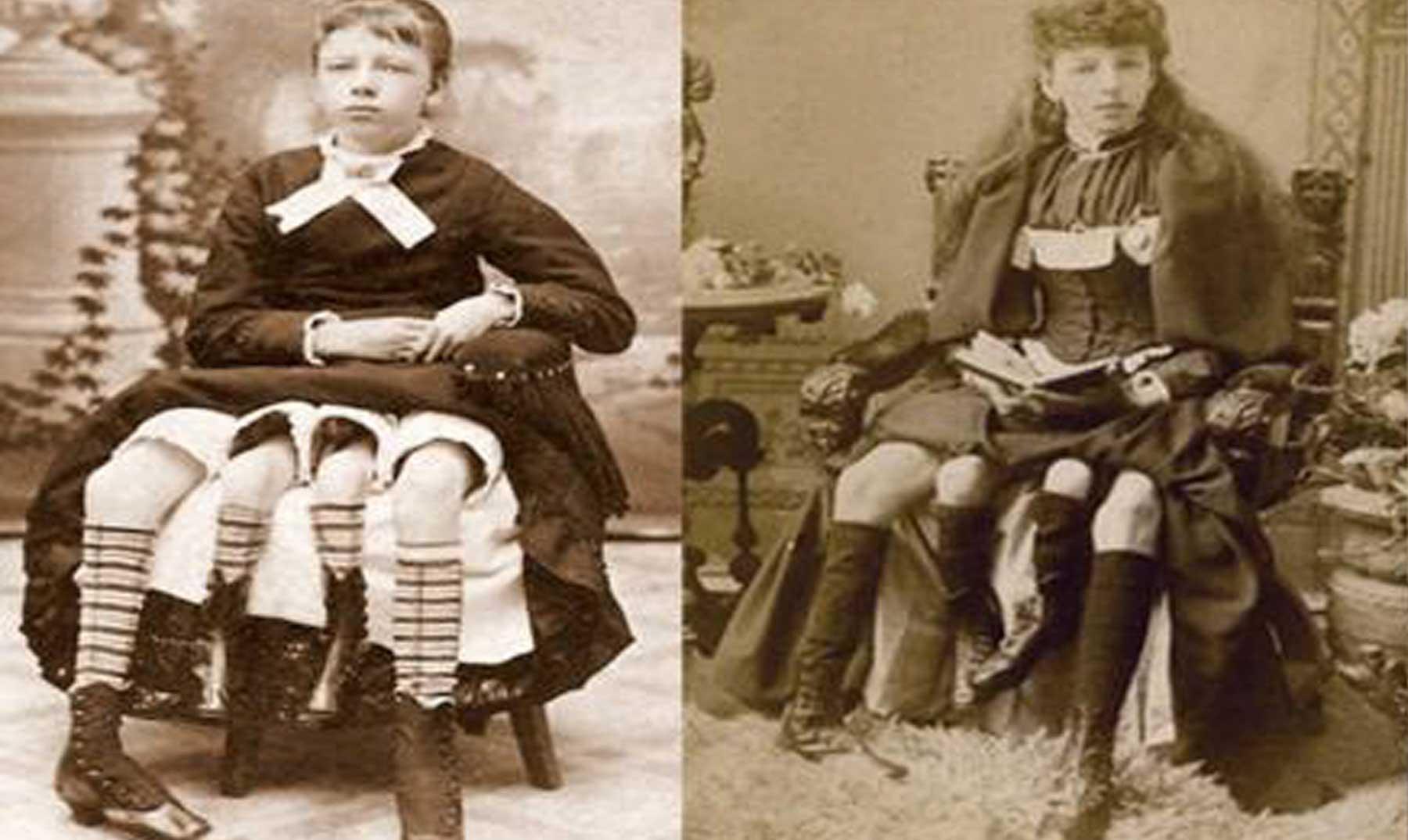 Resultado de imagen para Myrtle Corbin, la niña de las cuatro piernas