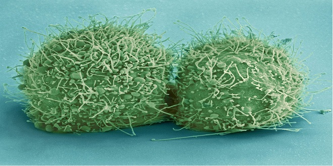 hela-cells-544318_1280