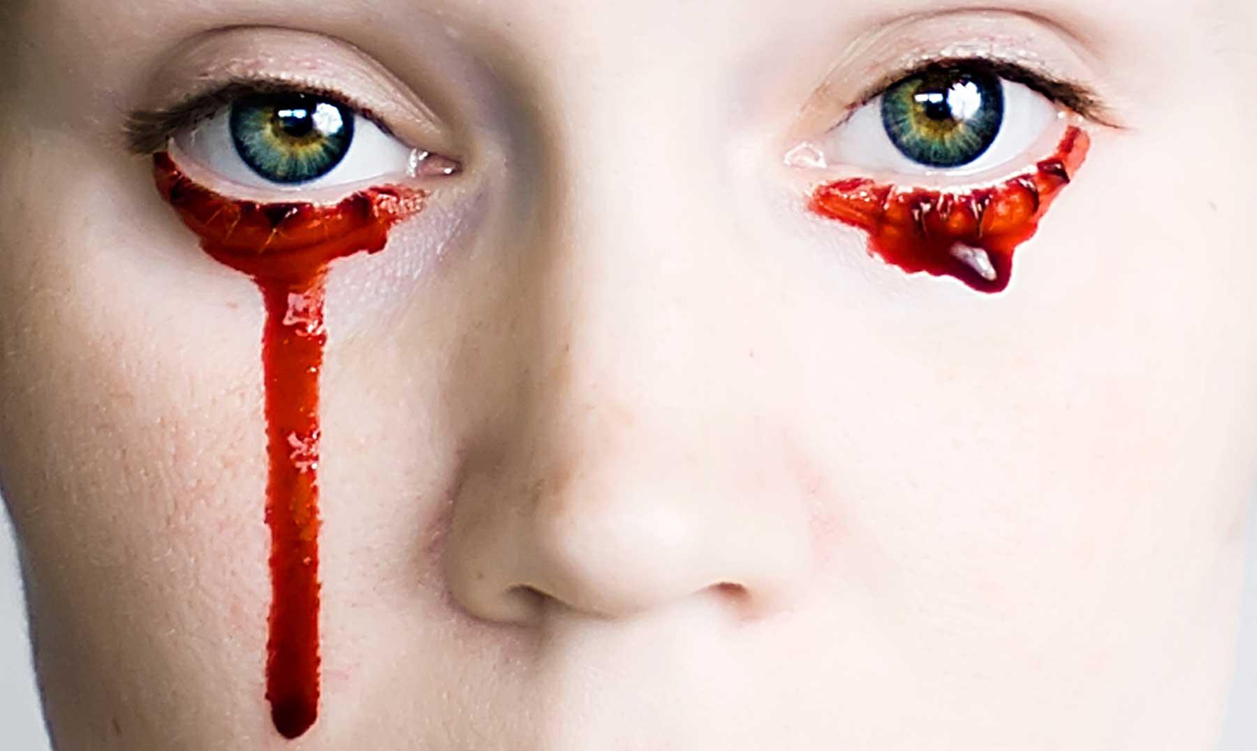 ¿Es posible llorar sangre?