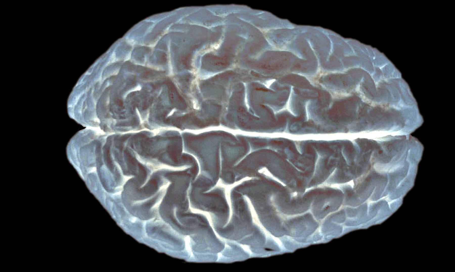 """El parásito mortal: la peligrosa ameba que """"devora"""" el cerebro humano"""