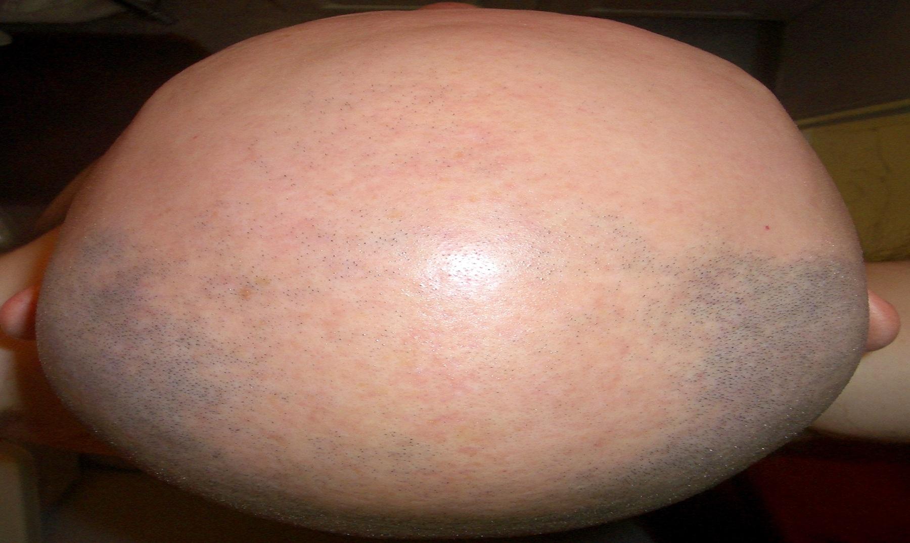 Eliminar la alopecia sin efectos secundarios