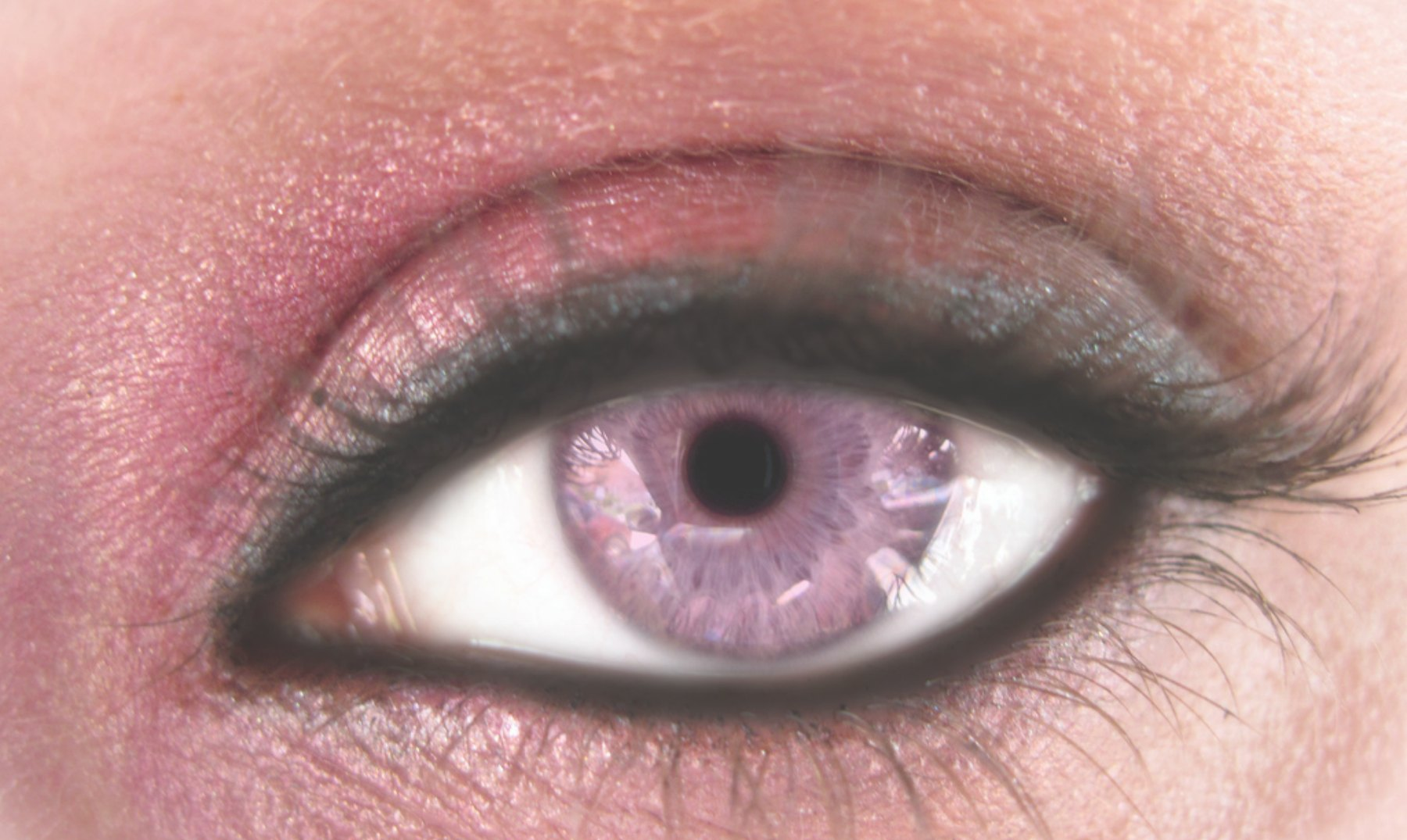 Síndrome de Alejandría, ¿la enfermedad de los ojos violetas?