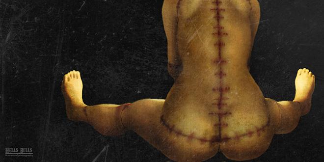 cicatriz, curiosidades de la piel