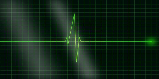 electrocardiogram-36732_1280 (Copy)