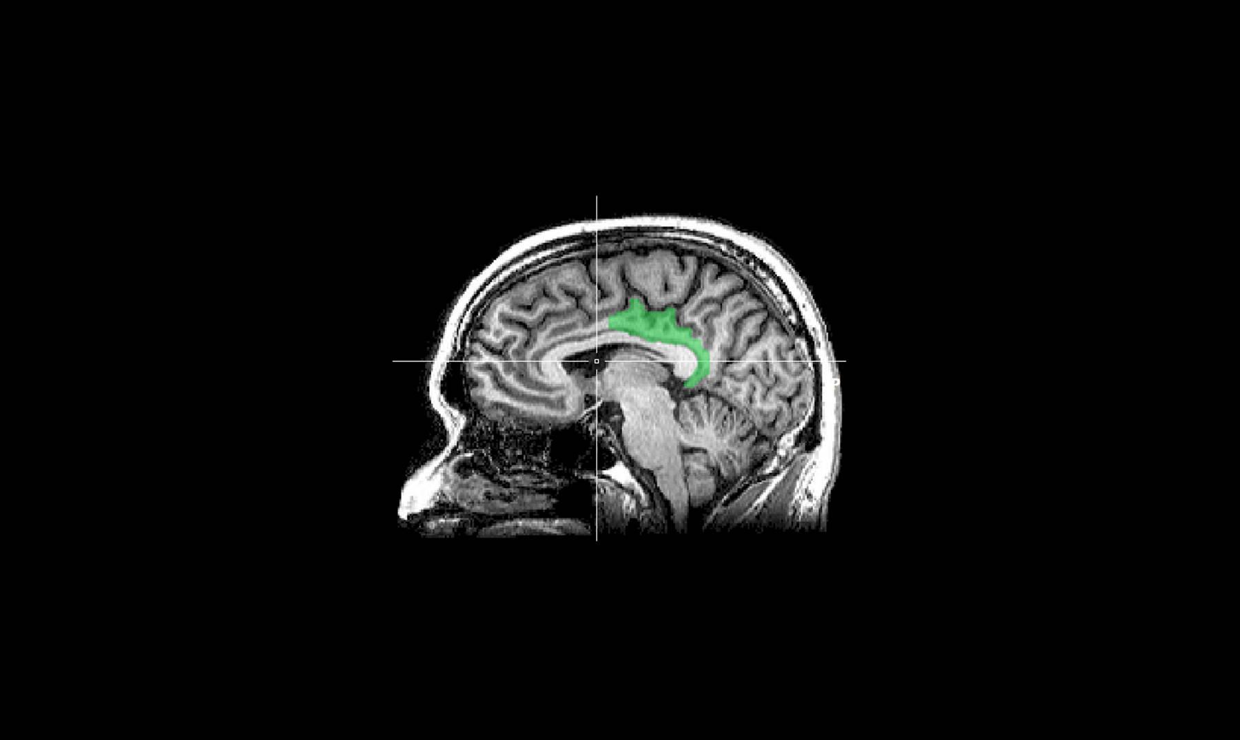 ¿Puede el cerebro calcular las intenciones de los otros?