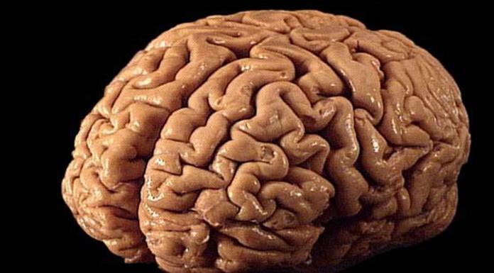 ¿Sabes qué es la reserva cognitiva?