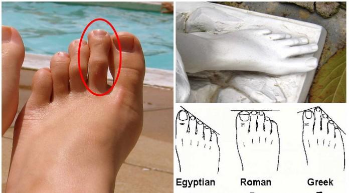 dedo de morton, pie griego