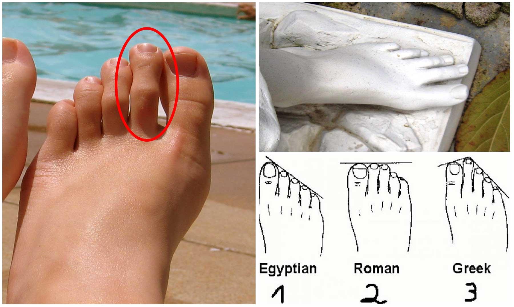 El elegante Dedo de Morton o Pie Griego | ¿Lo tienes