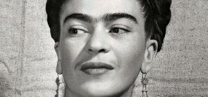 enfermedad de frida kahlo