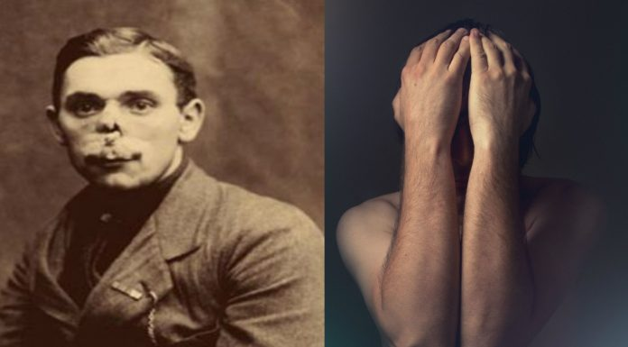La historia de los hombres sin rostro de la Primera Guerra Mundial