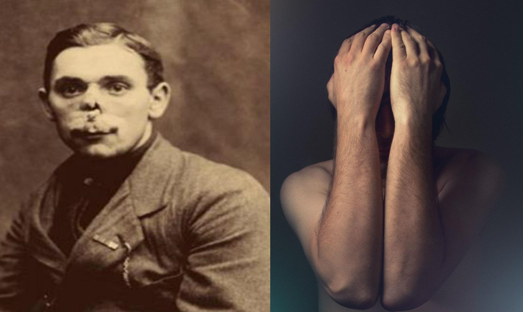 La Historia De Los Hombres Sin Rostro De La Primera Guerra