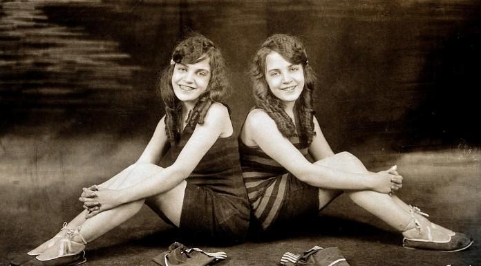 """La triste historia de las hermanas siamesas """"encadenadas"""" por la espalda"""