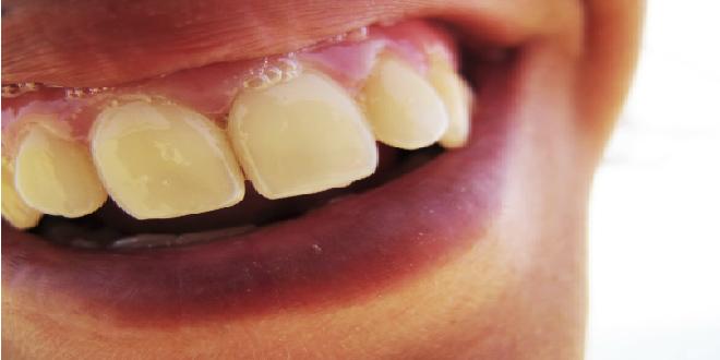 dientes y saliva