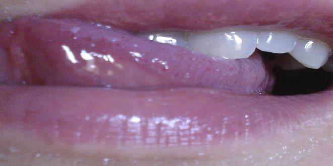 lengua y saliva