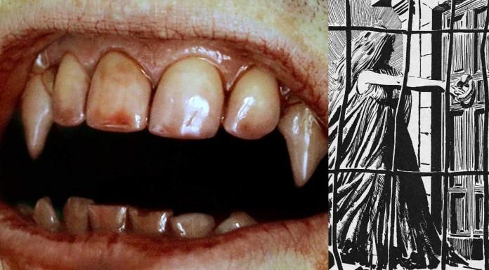 La curiosa relación entre el vampirismo y la tuberculosis