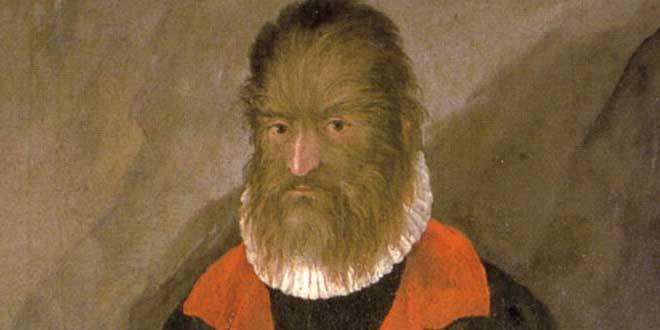 Petrus Gonsalvus, el hombre lobo canario