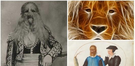 La historia de Lionel, un niño con rostro de león