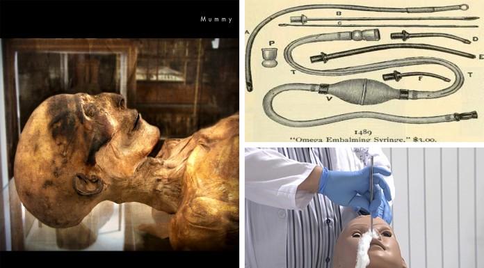 ¿ Cómo se embalsama un cadáver ? Las 5 fases