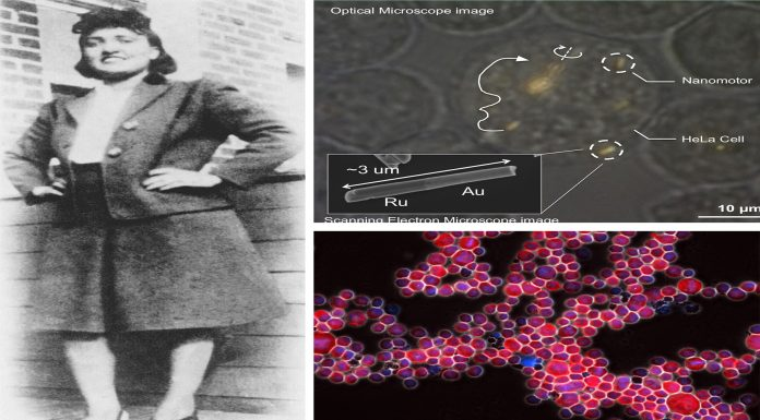 El extraordinario caso de Henrietta Lacks, o las inmortales células HeLa