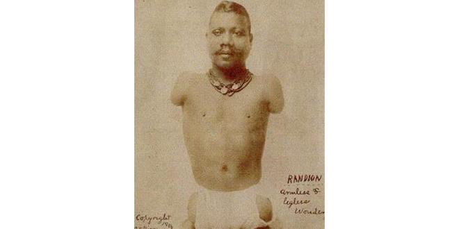 La historia del Príncipe Randian: el hombre oruga