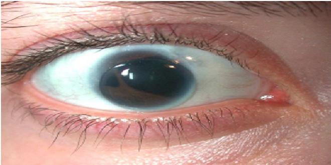 ¿Es posible tener dos pupilas?