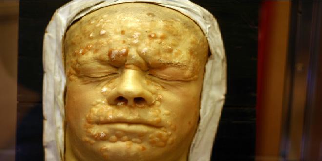 Una antigua epidemia encubierta: la sífilis