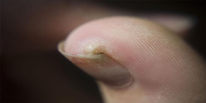 15 cosas que debes saber de las picadas de insectos