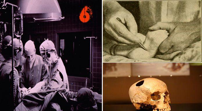 6 intervenciones médicas brutales que podrían practicarte hoy