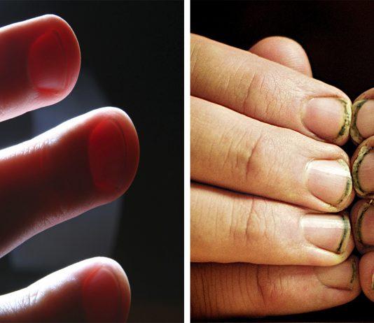 Lo que hay bajo tus uñas...