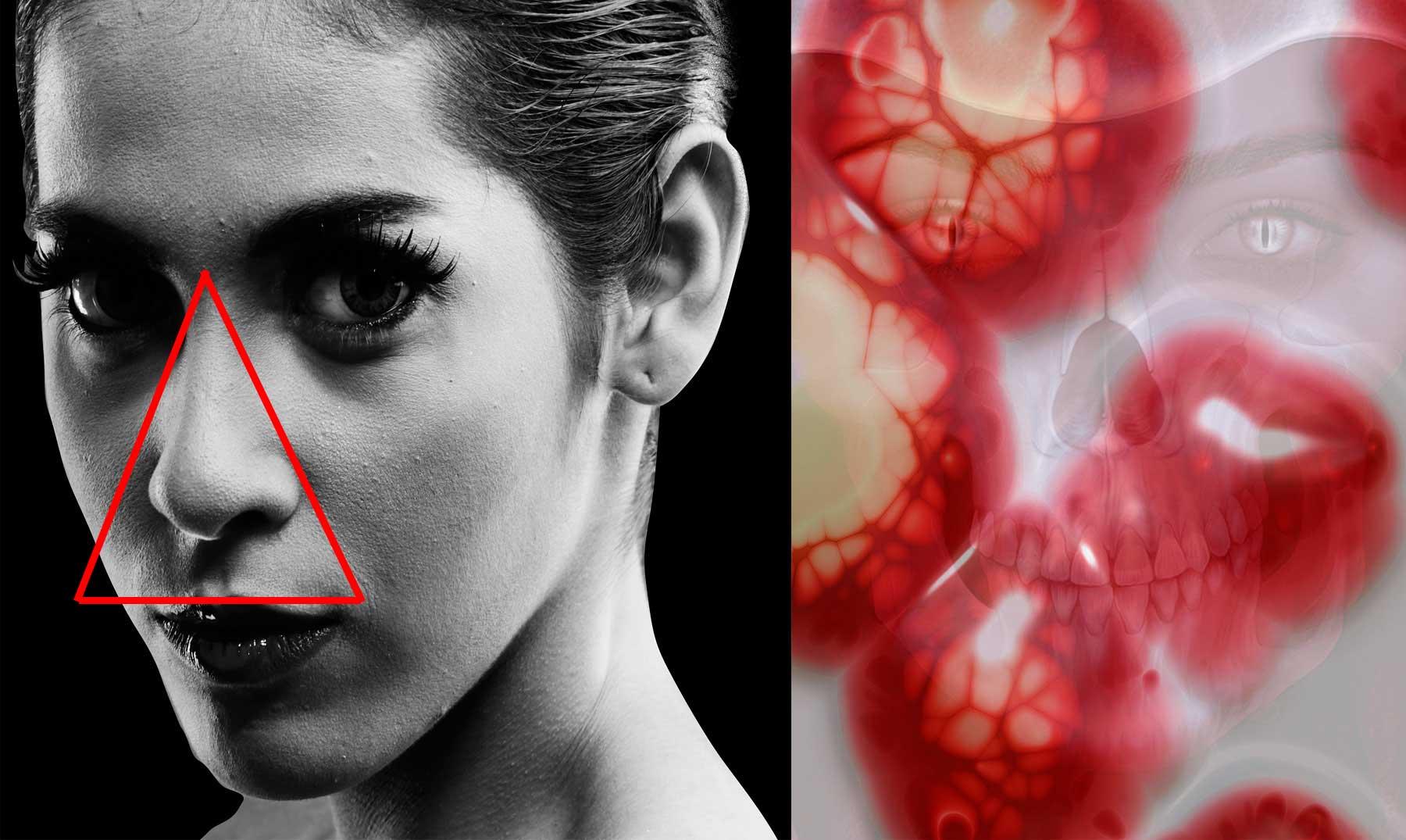 Hay un triángulo de la muerte en tu cara y tocarlo mucho podría ser ...