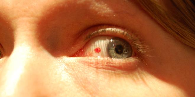 7 enfermedades que pueden detectarse mirando a los ojos