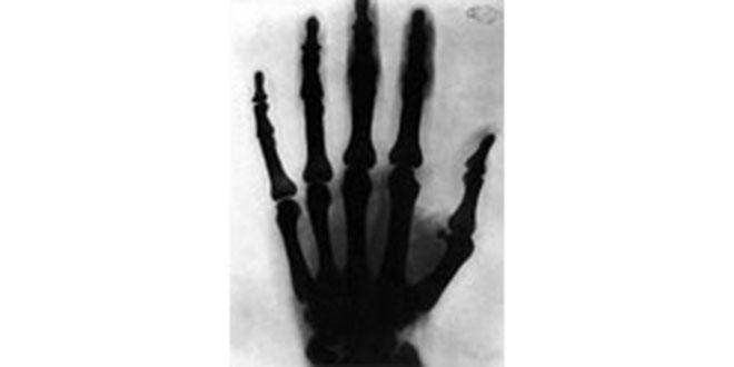 inventos de Nikola Tesla, rayos X